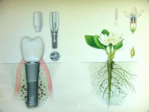intrebari-despre-implant