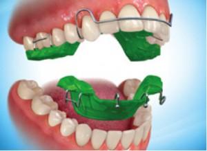 ap_ortodontie